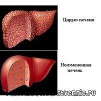 Алкогольний цироз печінки: симптоми, дієта, лікування, прогноз