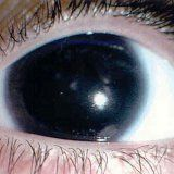 Анірідія відсутність райдужки ока