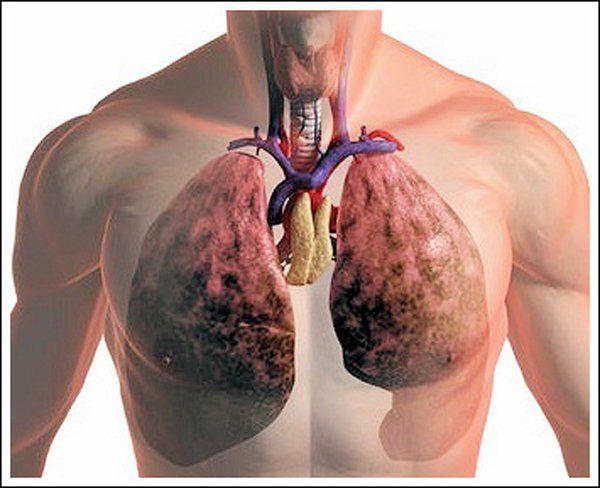 Запалення легенів, симптоми, лікування і можливі небезпеки хвороби