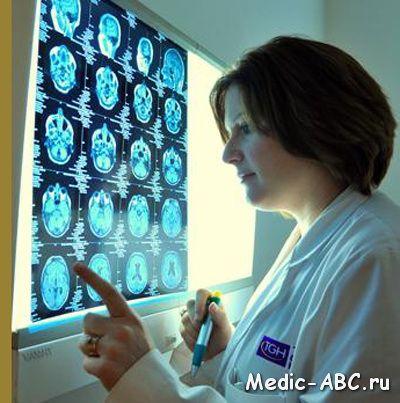 Атрофія головного мозку