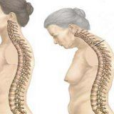 Хвороба бехтерева її симптоми лікування