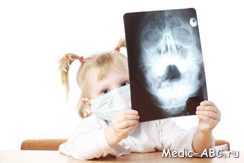 Чим лікувати гайморит у дітей