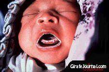 Чим лікувати молочницю в роті