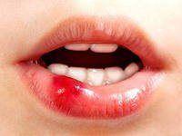 Чим лікувати розбиту губу