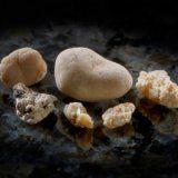 Що робити якщо з нирок вийшов камінь