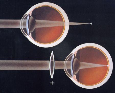 Що означає гіперметропія слабкого і середнього ступеня очей