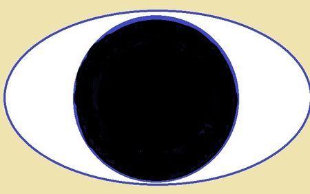 Що таке анірідія очей і її лікування