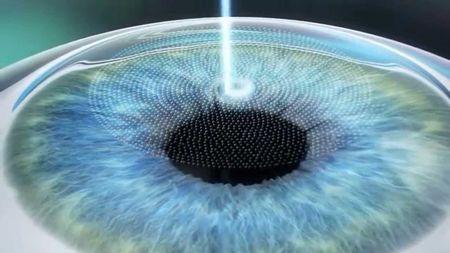 Що таке ексімерлазерних корекція зору