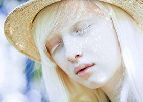 Депігментація шкіри