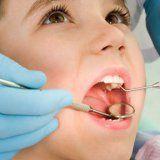 Дитячий карієс молочних зубів