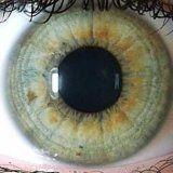 Діагностика хвороб по райдужці ока