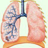 Дисемінований туберкульоз в організмі людини