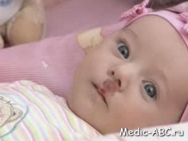 Гемангіома у новонароджених дітей
