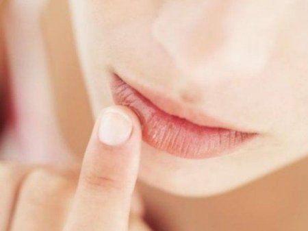 Герпес на губах - негарна хвороба