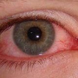 Очна хвороба вірус герпесу