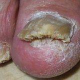 Грибкові ураження нігтів у людини