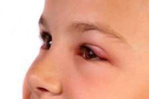 Халязіон на оці у дітей (дитину)
