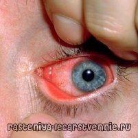Хламідіоз: симптоми, лікування, причини виникнення, профілактика