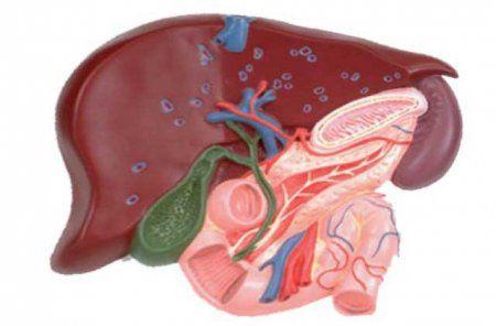 Хронічний холецистит: причини запалення, лікування