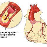 Ефективні народні засоби для зниження холестерину
