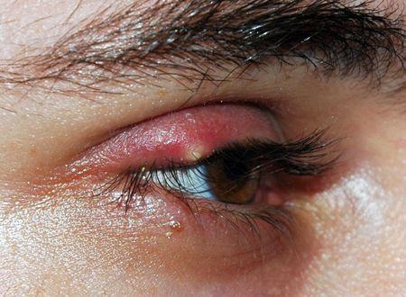 Як швидко вилікувати ячмінь на столітті очі