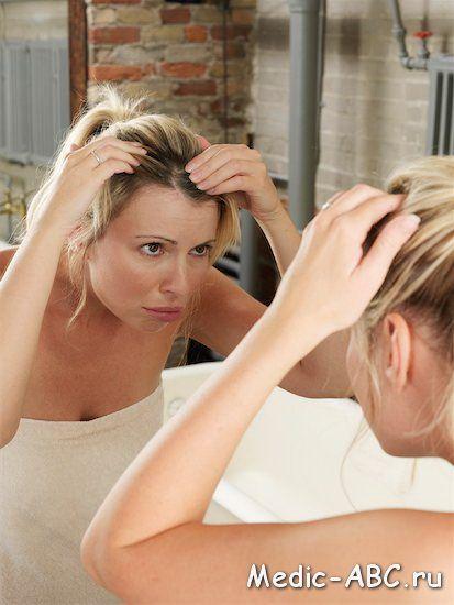 Як позбутися від себорейного дерматиту
