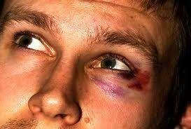 Як позбутися від синців під очима від удару швидко і ефективно? фото