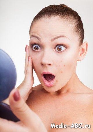 Як позбутися від вугрів на обличчі