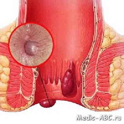 Як ефективно вилікувати делікатну хвороба (геморой)?