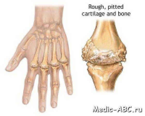 Як лікувати артрит?