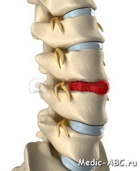 Як лікувати грижі спини