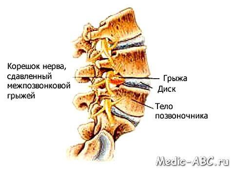 Як лікувати грижу хребта шийного відділу