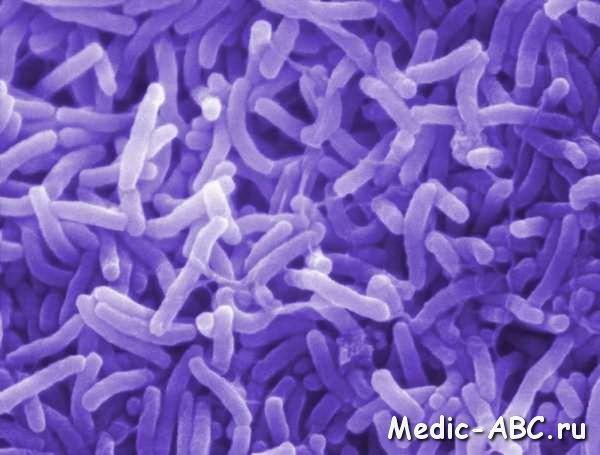 Як лікувати холеру
