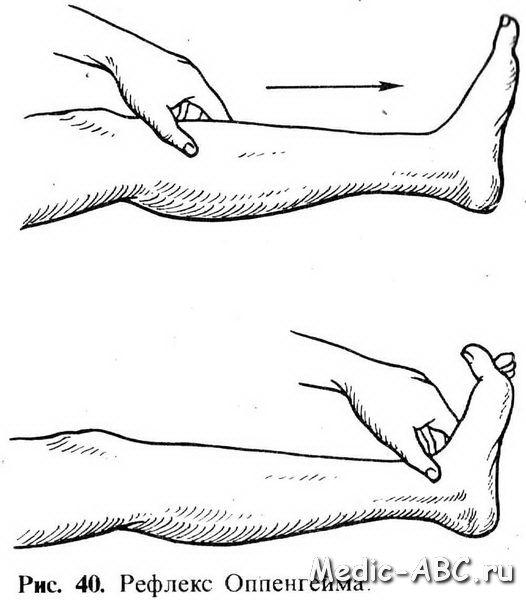 Як лікувати розтягнення стопи