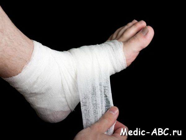 Як лікувати травму ноги