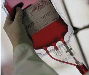Як очистити кров в домашніх умовах