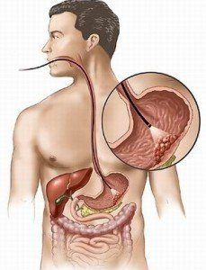 Як позбутися від газоутворення в кишечнику