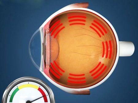 Яка норма очного тиску нормальна у людини