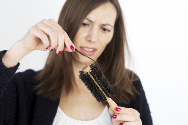 Які вітаміни пити при випаданні волосся: відгуки і поради фахівців