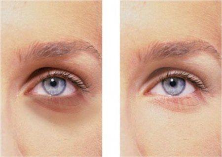 Червоні білки очей і набряки під очима