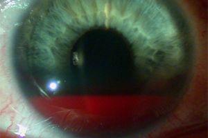 крововилив у сітківку ока