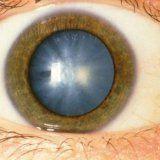 Лікування катаракти в літньому віці