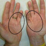 Лікування контрактури і хвороби дюпюїтрена