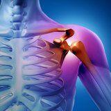 Лікування остеогенної саркоми у людини