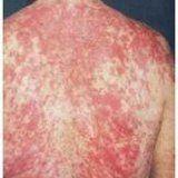Народне лікування захворювання кропив'янка
