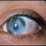 Народні методи лікування глаукоми