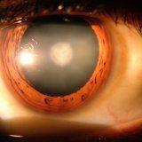 Народні методи лікування катаракти