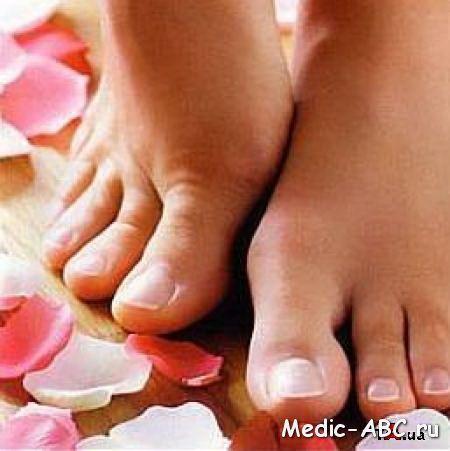 Народні методи лікування мікозів