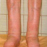 Народні засоби лікування від слоновості ніг