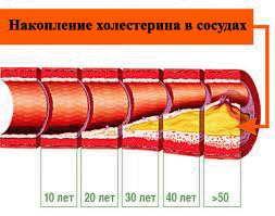 Норма холестерину